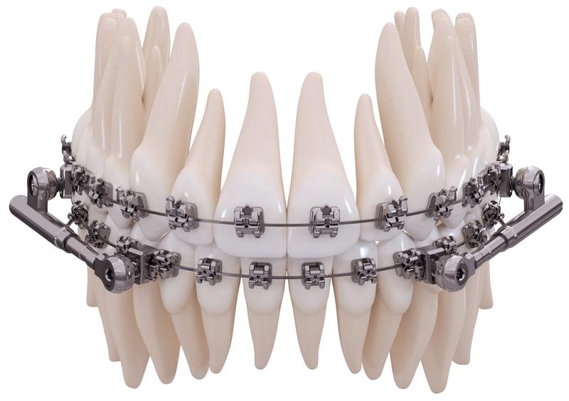 Power Scope 2 - festsitzende Zahnspange